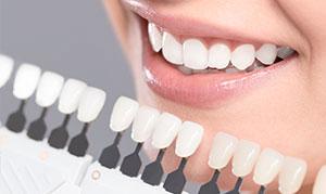 kosmetische-zahnaufhellung-300x179-1.jpg